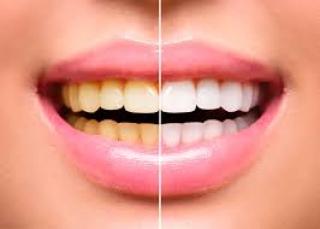 Clareamento dental: o que você precisa saber